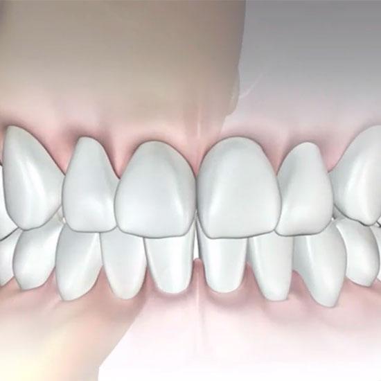 Zeichnung Zähne